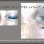 cicatrice-pigmentata-